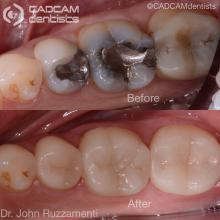 cadcam before & after